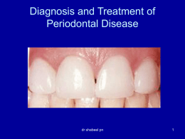 STAGES OF GINGIVITIS AND PERIODONTAL DISEASE