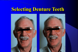 Selecting and Setting Denture Teeth