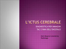 L`ICTUS CEREBRALE - MULTIMEDICA.CATANIA AGVsrl