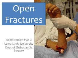 Open Fractures - Loma Linda Medical Center