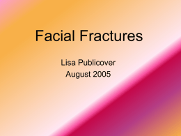 Facial Fractures - Medical Student LC