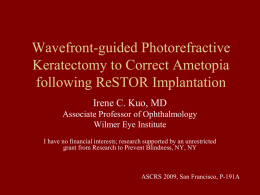 Wavefront-guided Photorefractive Keratectomy to Correct