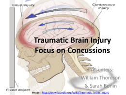 Traumatic Brain Injury Focus on Concussions