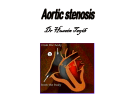 Valvular Heart Disease Aortic Stenosis