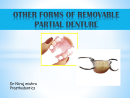 OTHER FORMS OF REMOVABLE PARTIAL DENTURE