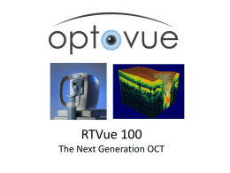 RTVue 100 The Next Generation OCT