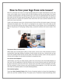 How to free your legs from vein issues